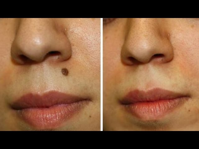 Get Rid Of Moles Naturally Fast